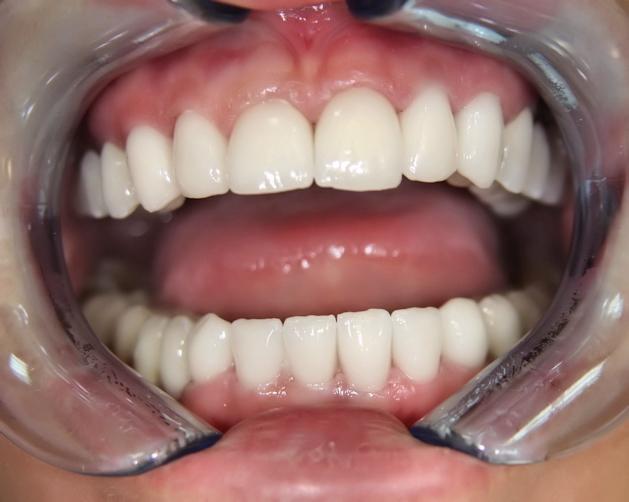 накладные зубы без десны